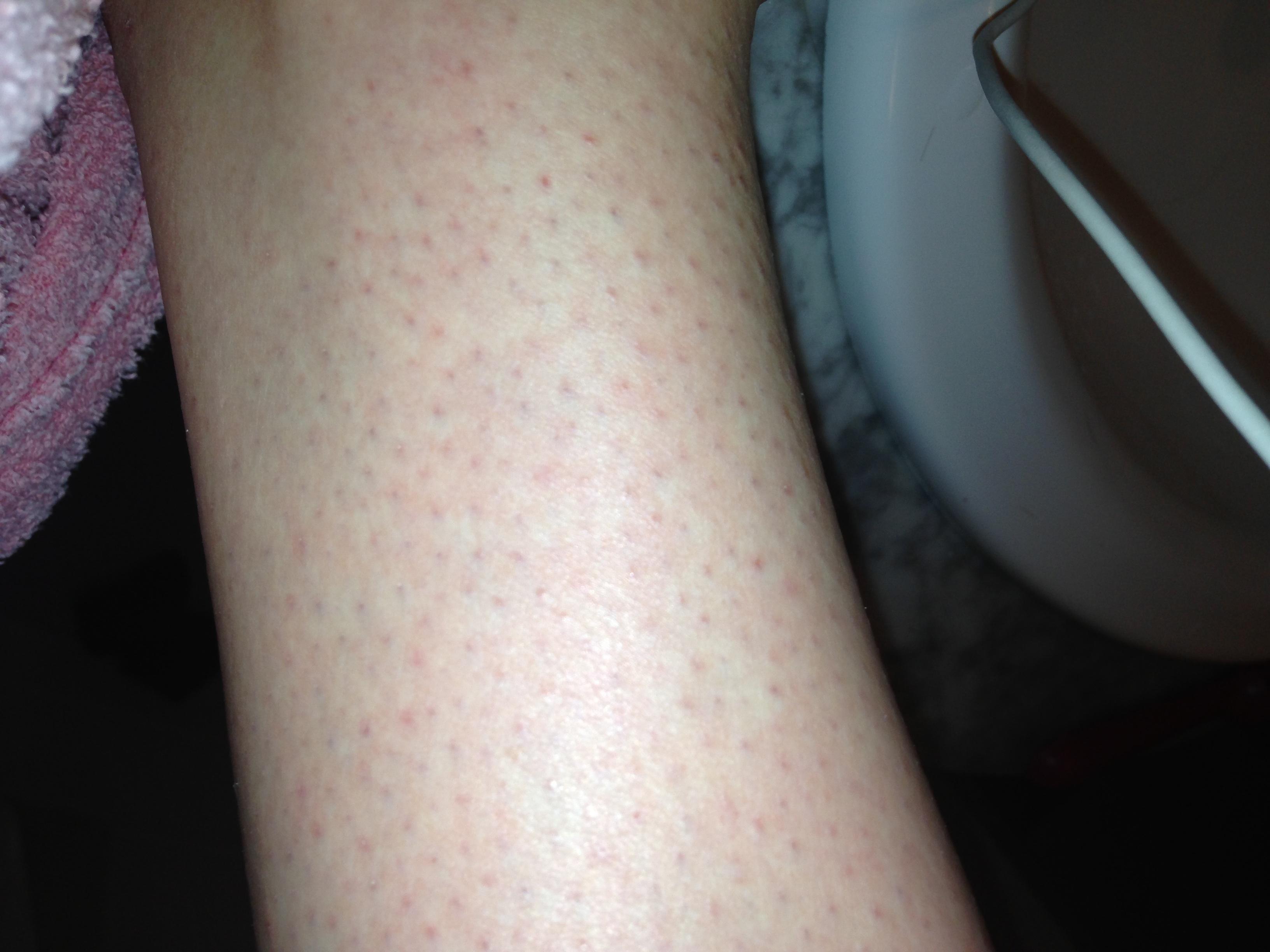 geirriteerde huid na scheren benen